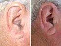 Ear Laser Hair Removal Treatment
