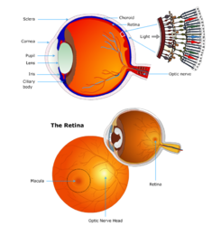 Age Related Macular Degeneration Surgery
