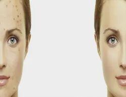 Acne Scars Treatment Services