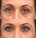 Filler For Under Eye Dark Circle Treatment, For Professional, Prescription