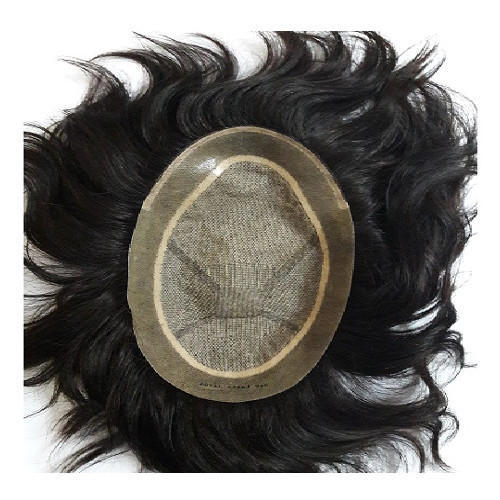 grey patch in mens hair