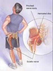 Sciatica Nerve Compression Treatment