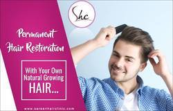 Non Surgical Hair Replacement In USA