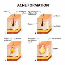 Acne Scars Laser Treatment Service