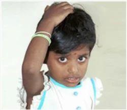 Headache In Children Treatment Service