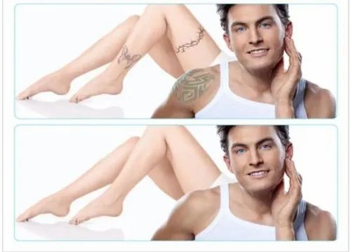 Tattoo Removal Laser Treatment Services In Surat Patel Skin Care
