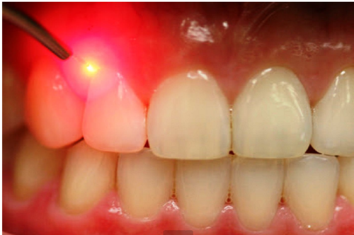 Laser Dental Treatments In Jlj Complex Thrissur Id