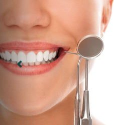Teeth Cleanup Treatment Services