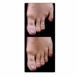 Artificial Toe