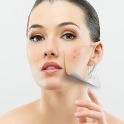 Acne peeling Treatment