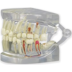 Tooth Universal Model