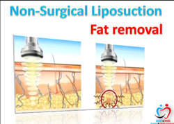 Fat Removal Treatment Services