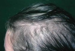 Female Pattern Baldness Treatment
