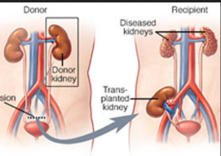 Kidney Transplantation in Sanganer, Jaipur | ID: 18748562012