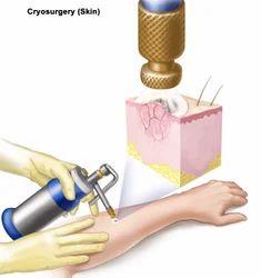 Cryosurgery treatment