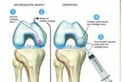 Articular Cartilage Repair Surgery