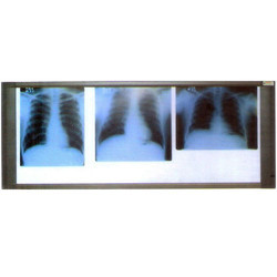 84-0103 X Ray View Three Screen