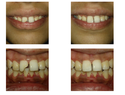 Teeth Fractured Treatment Service