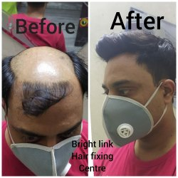 1 Year Hair Bonding Service