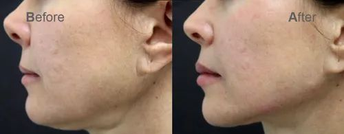 Filler Treatment for Jawline Correction in Porur, Chennai