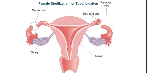 how to get pregnant with tubes tied cut and burned