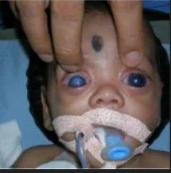 Glaucoma In Children Treatment Service