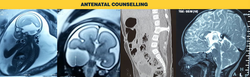 Antenatal Counseling Treatment Services