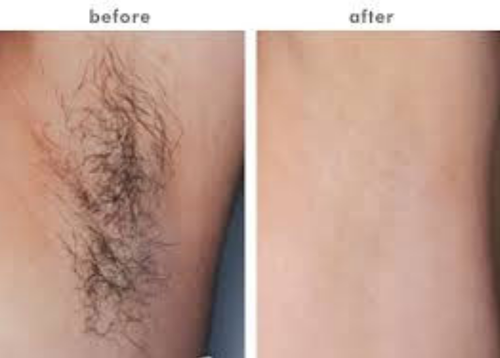 Laser Hair Removal Treatment Service In Jubilee Hills Hyderabad