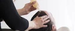 Anti-Dandruff Treatment, For For Treating Severe Dandruff