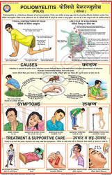 Poliomyelitis (Polio) For Prevent Diseases Chart