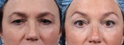 Eyebrow Lifting Filler Treatment