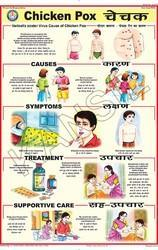Chicken Pox For Prevent Diseases Chart