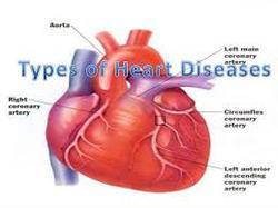 Ayurveda Heart Disease And Cholesterol