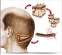 Fut Hair Transplantation Service