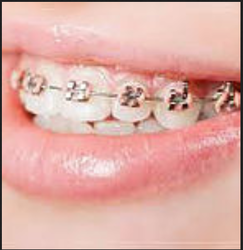Braces And Child Dentistry