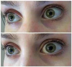 Filler For Under Eye Dark Circle Treatment