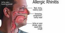 Allergic Rhinitis Treatment Services