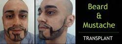 Beard-Mustache Hair Transplant Services