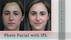 Woxmen Acne Treatment With IPL