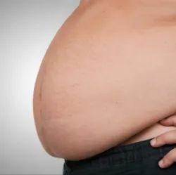 Morbid Obesity Treatment Service