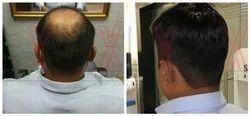 Male Mens Hair Bonding