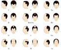 Male Genetic Hair Loss Treatment Service
