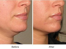 Double Chin treatment Service