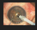 Phaco-emulsification Services