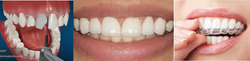 Smile Makeover With Dental Veneers