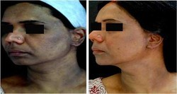 Skin Whitening Treatments