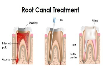 Image result for root canal treatment