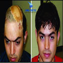 Hair Wigs For Burnt Patients / Accidental Patients For Men