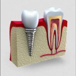 Dental Implant Treatment Service