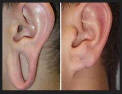 Ear Lobe Repair Skin Problems